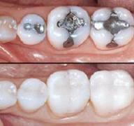 Coronas dentales.