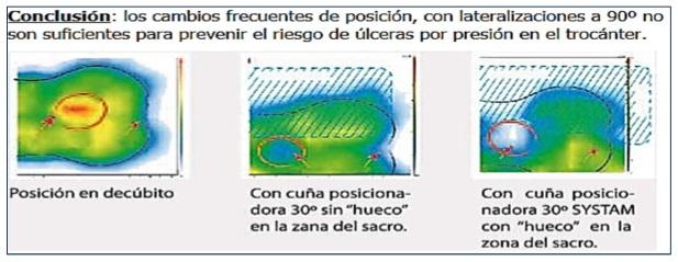 cua_antiescaras_de_posicionamiento_de_30_marca_systam