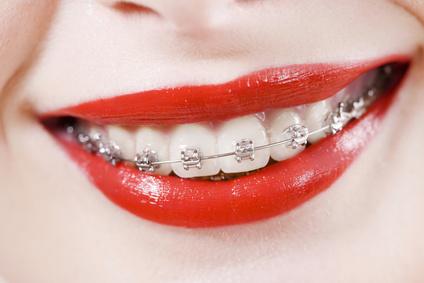 Pedido Ortodontia
